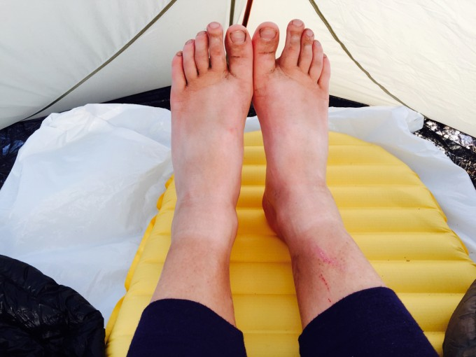 SHR Very Tired Feet after Day One
