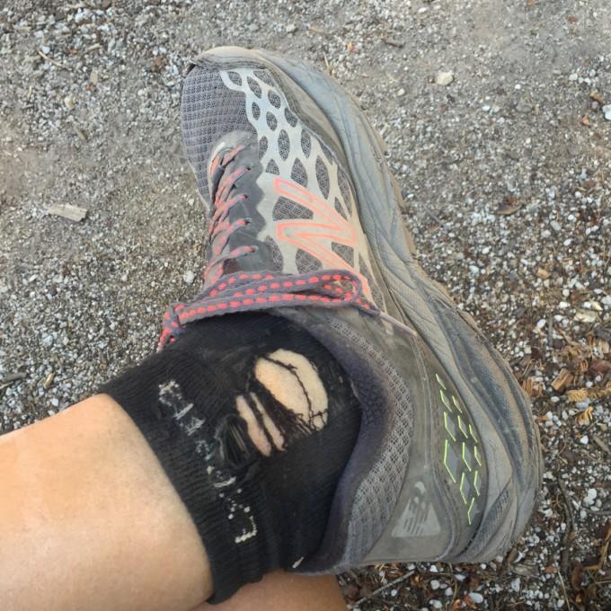 My ankles new balance leadvilles.